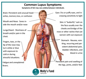 Lupus Diagram 2